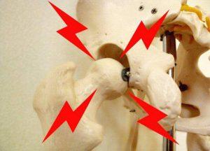 重症の股関節痛セルフ運動【股関節スイング】のやり方。股関節の可動域を広げよう