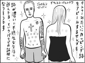辛酸なめ子のひとり健康法診断「カッピング」編