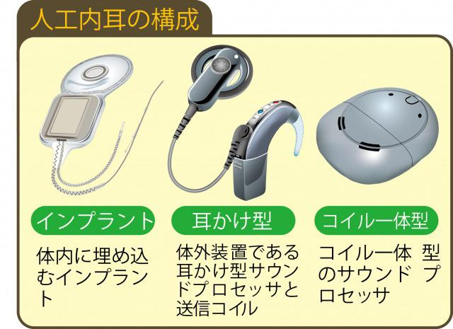 s_Hearing impaired cochlear implant書き直し.jpg