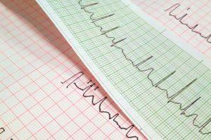 心房細動(不整脈)の厳選6記事|心房細動を予防する運動と食事法のすべて
