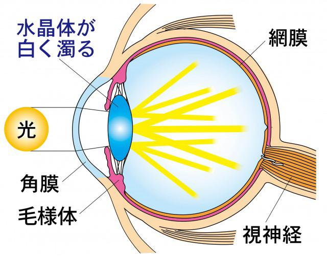 Diagram of cataract.jpg