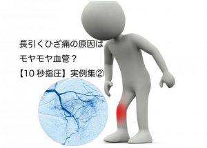 続報!モヤモヤ血管を押す「ひざ10秒指圧」実例。薬も無効のひざ痛が消え正座できた