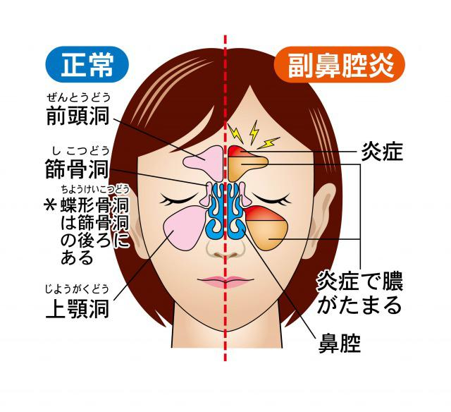Sinusitis 1.jpg