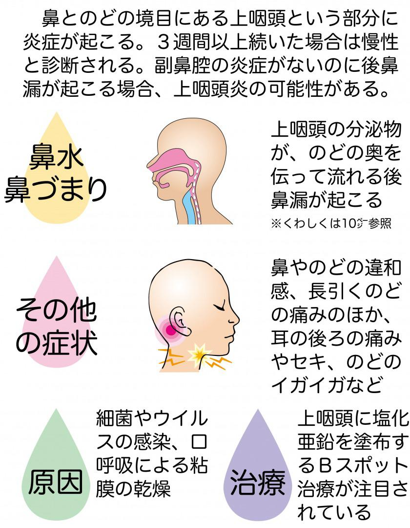 chronic-on-pharyngitis-chart.jpg
