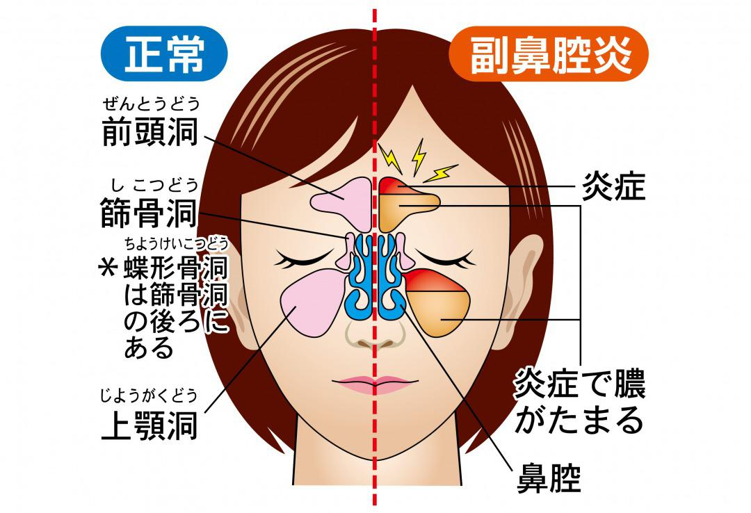 副 鼻腔 炎 胃