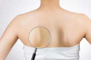 期外収縮予防の運動には脈正しマッサージ|左肩甲骨内側のコリほぐしがおすすめ