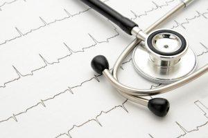 不整脈の種類をセルフ診断|心房細動や期外収縮の脈拍がわかるグラフつき