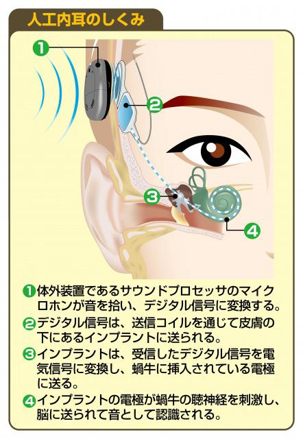 s_Hearing impaired cochlear implant4.jpg