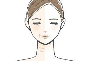 [亜麻仁油の働き3]肌トラブル(湿疹、皮膚炎など)が改善し、シワが目立たなくなった人も
